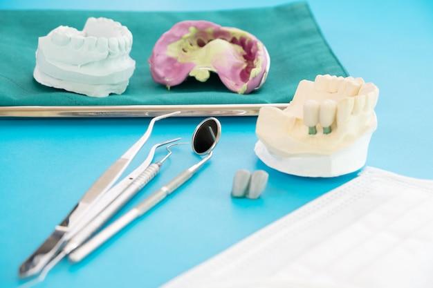 インプラントモデルの歯のサポートは、ブリッジインプランとクラウンを修正します。