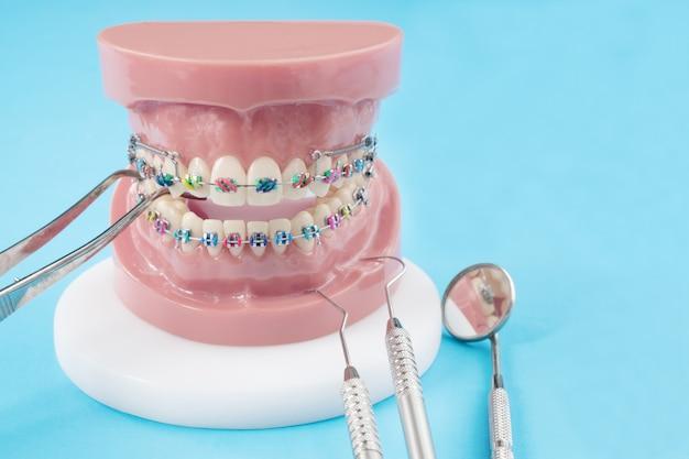 歯列矯正モデルおよび歯科医ツール-さまざまな歯列矯正ブラケットまたはブレースの歯モデルのデモンストレーション