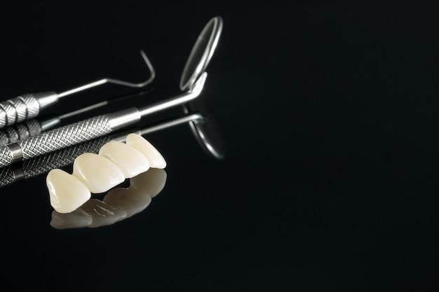 クローズアップ/補綴または補綴/歯冠およびブリッジインプラント歯科用機器およびモデルエクスプレスフィックス修復。