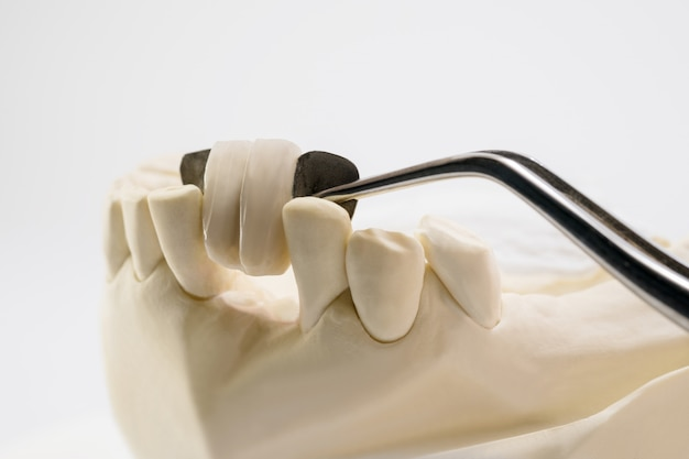 クローズアップ/歯科用メリーランドブリッジ/クラウンおよびブリッジ装置とモデルエクスプレスフィックス修復。