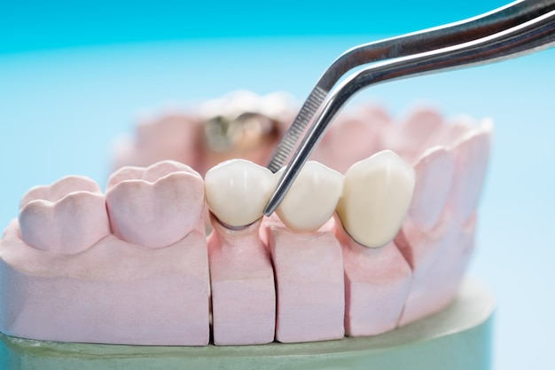 クローズアップ/補綴または補綴/歯冠およびブリッジインプラント歯科機器およびモデルエクスプレスフィックス修復。