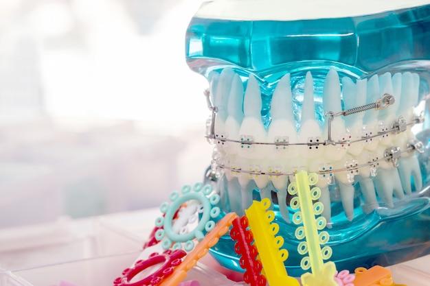 歯列矯正モデルを閉じる-さまざまな歯列矯正ブラケットまたはブレースのデモンストレーション歯モデル