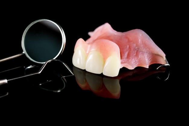 一時的な義歯と鏡。
