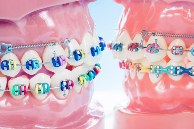 歯科医のツールと歯科矯正モデルを閉じます。