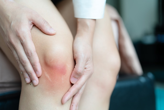 Ушибленное колено женщины азии, селективный фокус