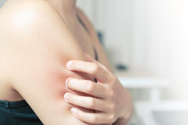 女性は腕、医療と薬のコンセプトにかゆみを引っかける。