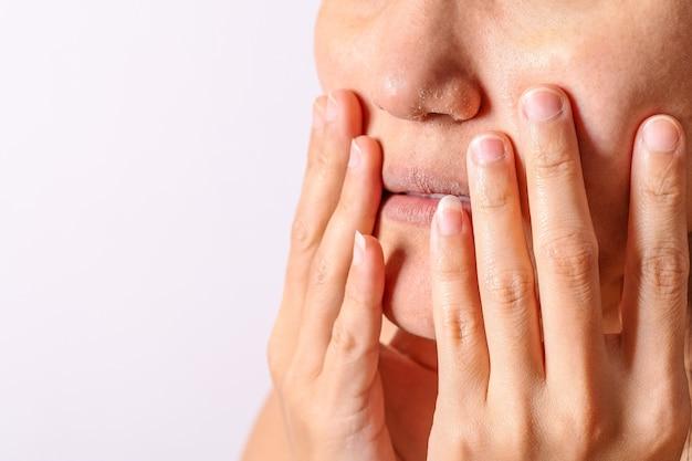 アレルギー性女性には湿疹の乾燥した鼻と唇が冬の季節にあります。