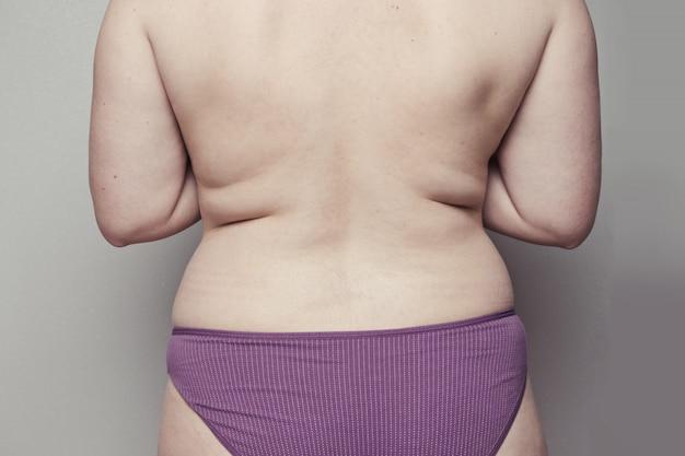 太りすぎ、脂肪体の概念。栄養失調と運動不足による背中のひだを伴う人体の背中。