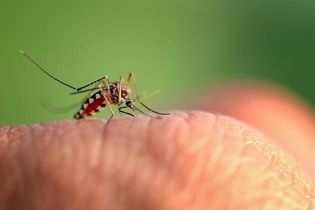 蚊に刺された手