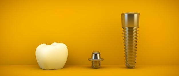 歯科補綴物