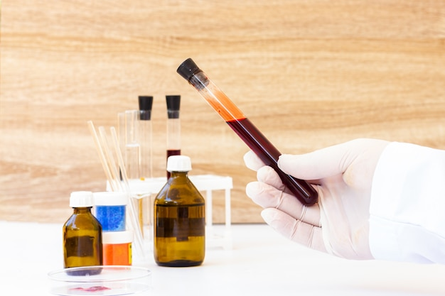 Кровь в пробирках. лаборатория для сдачи анализов крови. тест на короновирус