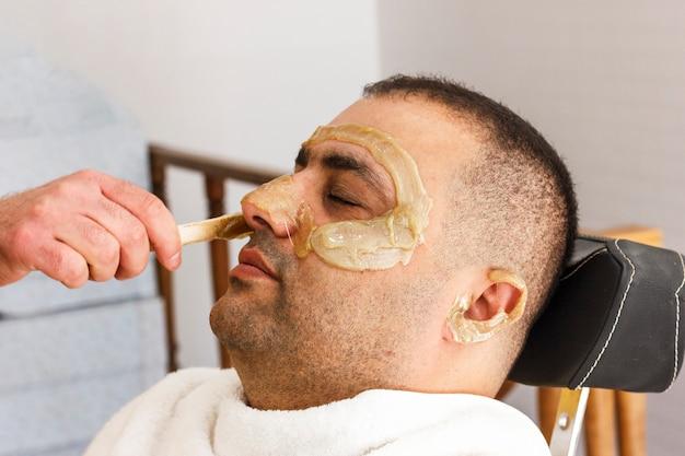 Удаление волос. мужское лицо с сахарной эпиляцией в турции