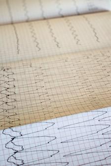 Закройте вверх по взгляду бумаги электрокардиограммы.