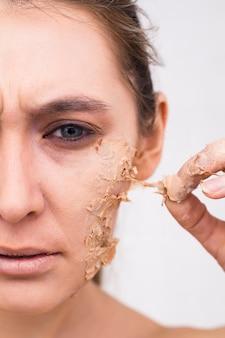 顔の皮膚の早期老化。女性の顔の半分がクローズアップされ、顔の皮膚が剥がれています。