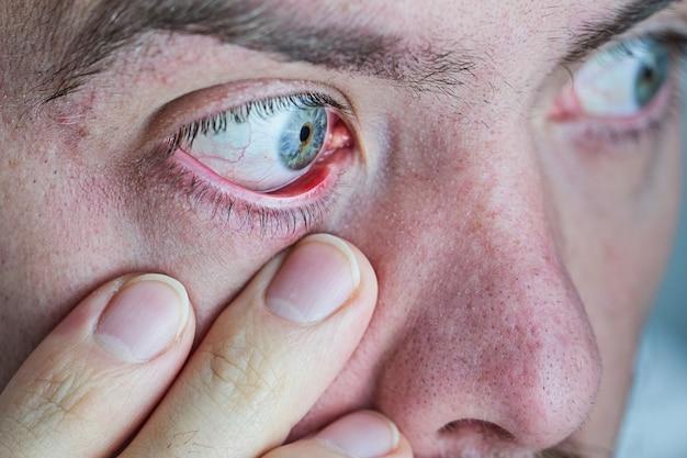 赤くてイライラする人間の目のクローズアップ。ドライアイの症状
