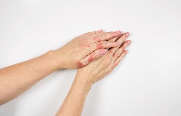 手に湿疹。