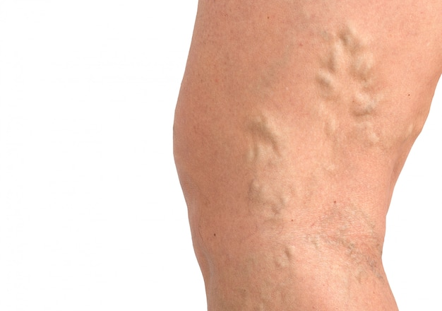 Варикозное расширение вен на коже макро крупным планом проблемы с кровообращением медицина