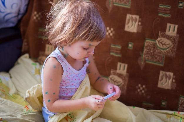子供の病気の水痘はベッドに座り、手に体温計を持っています