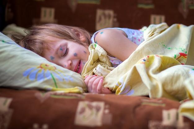 水痘を患っている子供はベッドに横たわり、盲目的に休息