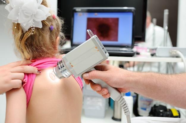 医者は患者のほくろを診察します