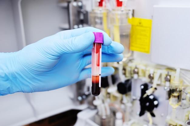 ガラス製の試験管または血液が入ったフラスコ