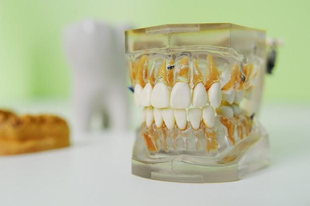 Искусственная челюсть на столе в кабинете стоматолога крупным планом