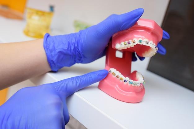 Цветные брекеты на зубы на искусственно челюсти крупным планом