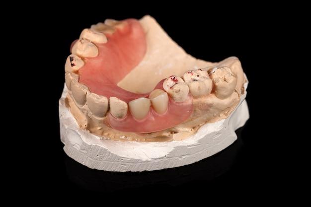 しっくいの義歯