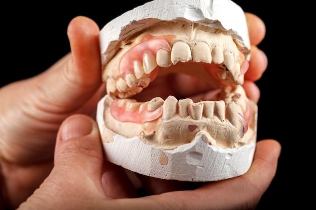 歯医者の手の中の石膏ベースの義歯。