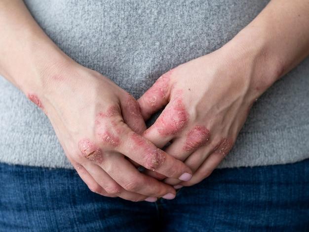 手にひび割れ、薄片状の肌。乾癬の皮膚科学的問題
