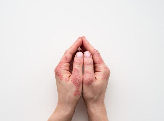 乾癬の皮膚。発疹のクローズアップと患者の皮膚の拡大縮小