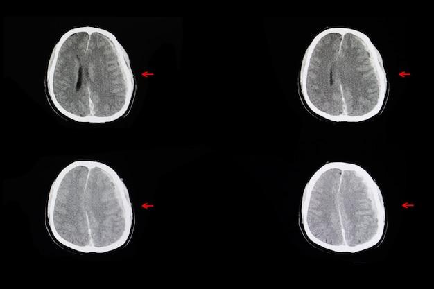 Внутричерепное кровоизлияние и отек мозга