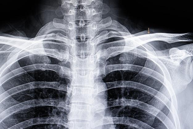 鎖骨の生え際骨折