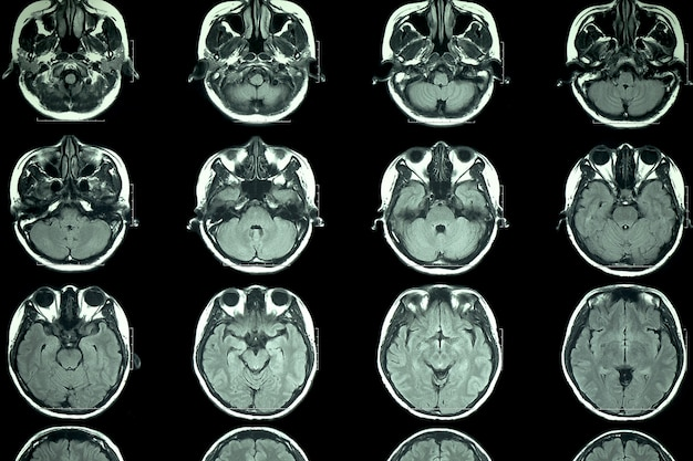 Мрт сканирование мозга