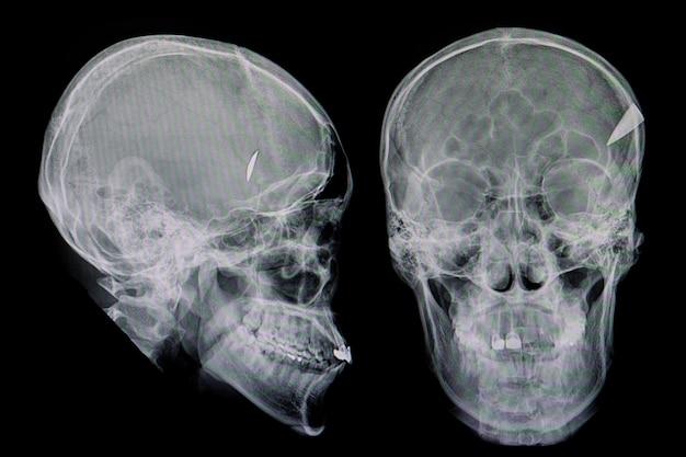 頭蓋骨を貫通するナイフ