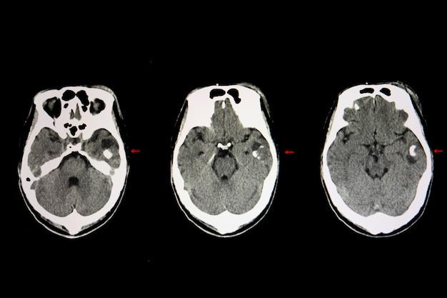 Кистозная опухоль головного мозга