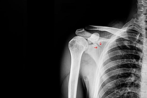 骨折肩甲骨