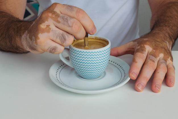 一杯のコーヒーを保持している白斑を持つ男