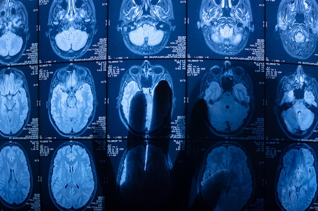 Мрт (магнитно-резонансное изображение) сканирование головного мозга. силуэт руки сквозь. рентгеновский снимок