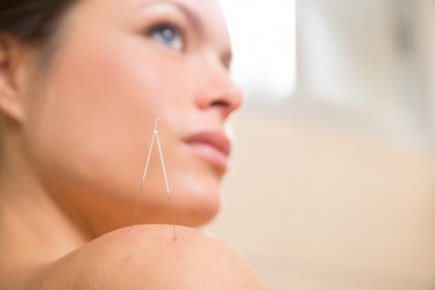 女性の肩に刺して鍼治療の針