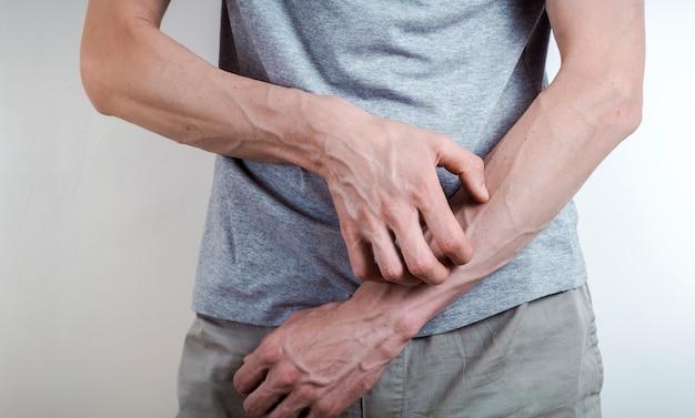 疥癬の概念。男は腕を傷つける。刺激。皮膚の乾燥。