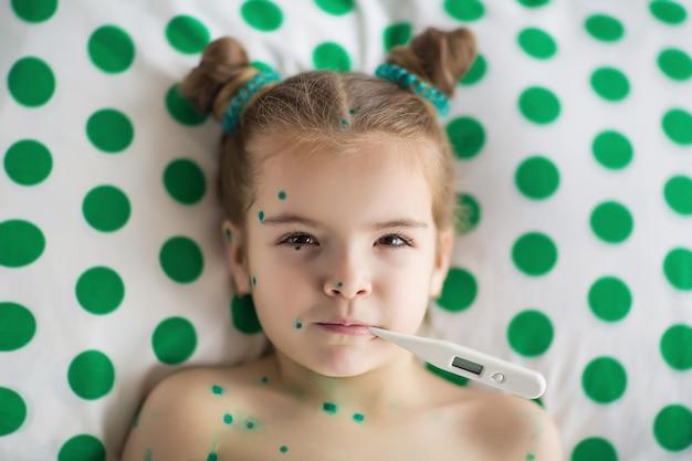 水痘に苦しんでいる女の子は温度を測定します