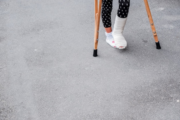 Ребенок, используя костыли и сломанные ноги для ходьбы. сломанная нога, деревянные костыли, травмы лодыжки.