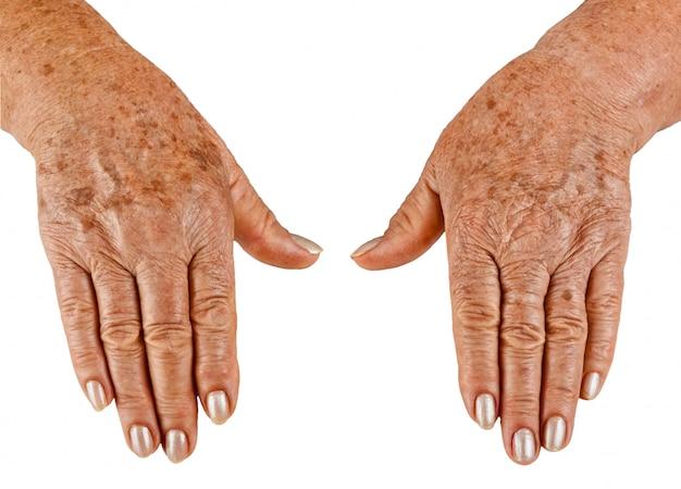 老婦人のクローズアップの手