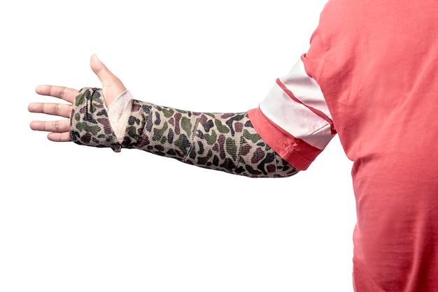 Человек с разноцветным слепком на сломанной руке