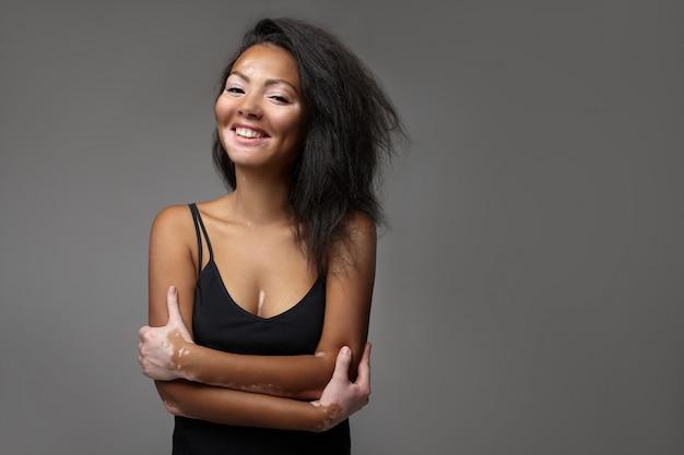 Красивая африканская девушка в студии с проблемами кожи витилиго