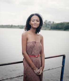 白斑病と美しい若いブルネットの女性