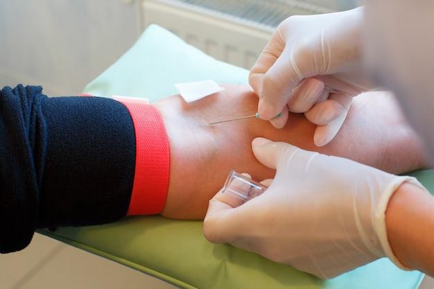 男性の静脈からカテーテルでチューブに血を取って医師の手のクローズアップ