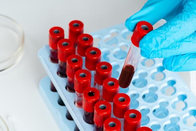 Руки доктора в синих перчатках держат пробирку с кровью