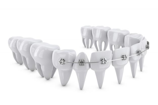 Стоматологические брекеты